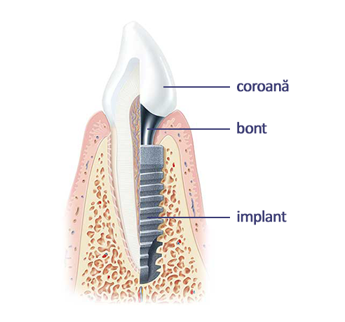 implant-dentar-iasi-bidental